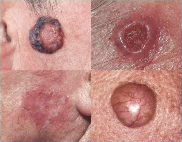 기저세포 암종
